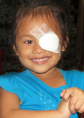 Smiling girl after cataract surgery